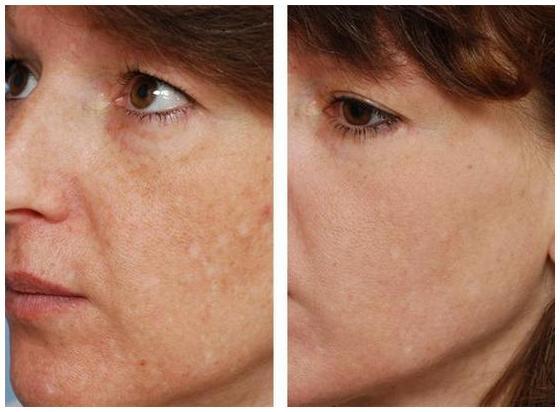 Лазерный пилинг: фото до и после очищения лица