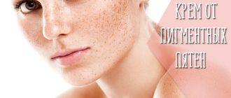Отзывы на крема от пигментных пятен на лице – какое средство самое эффективное?