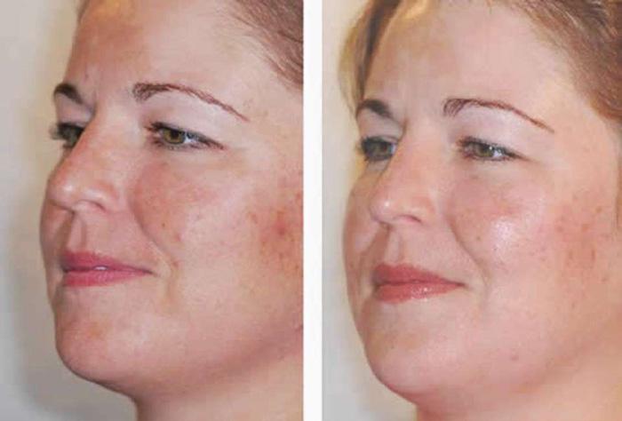 Фото до и после процедур пилинга ABR