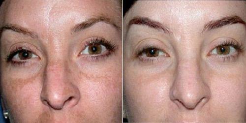 Отзывы клиентов на энзимный пилинг лица