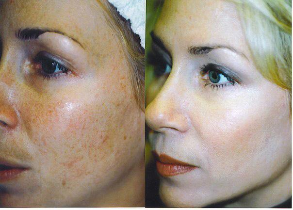Фотографии до и после проведения процедур ферулового пилинга
