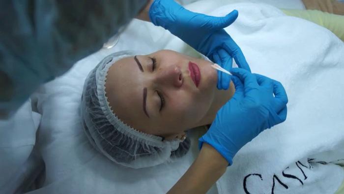 Отзывы косметологов на феруловый пилинг лица