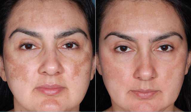 Фото до и после проведения фитинового пилинга