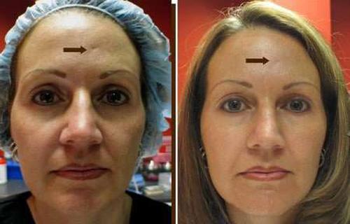 Фотографии до и после проведения фракционной мезотерапии