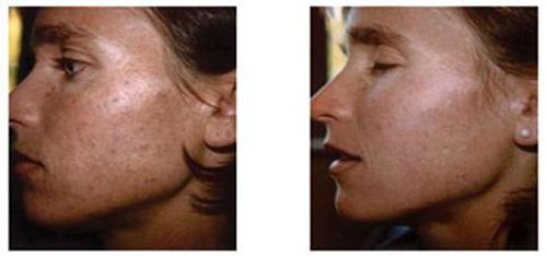 Фотографии до и после проведения процедур