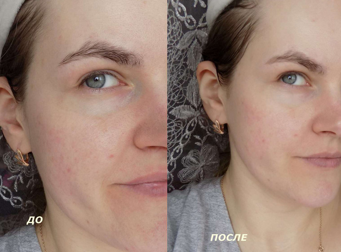 Фото до и после проведения пилинга с Фаберлик
