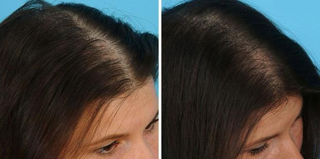Отзывы пациентов с фото до и после