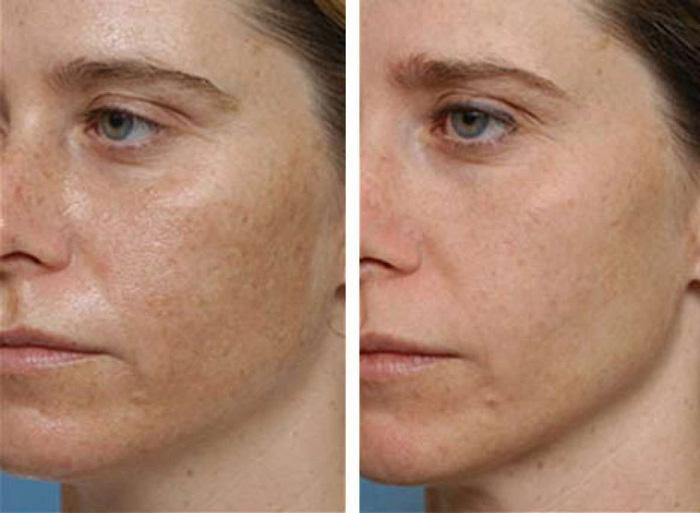 Фото до и после проведения пилинга лица