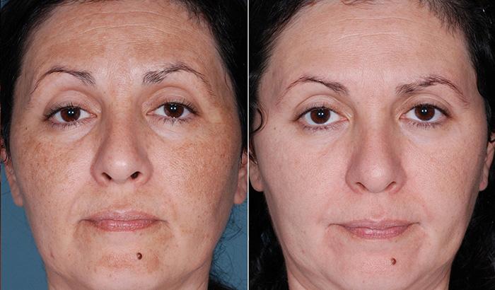 Фотографии до и после процедур Рафитокса