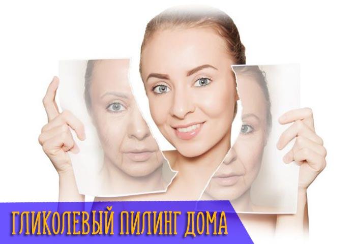 гликолевый пилинг для лица в домашних