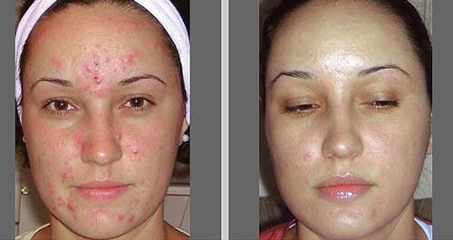Фотографии до и после процедур пилинга