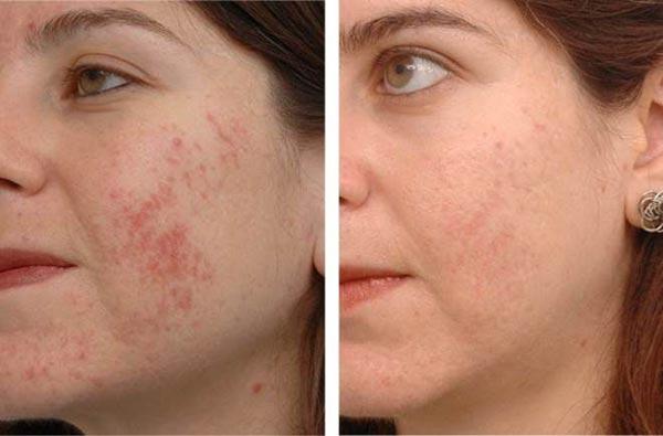 Отзывы на ультразвуковой пилинг лица с фото до и после