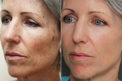 Фото до и после ировиноградного пилинга