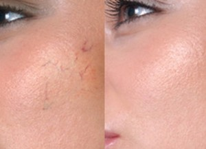 Отзывы и советы применения крема от купероза на лице