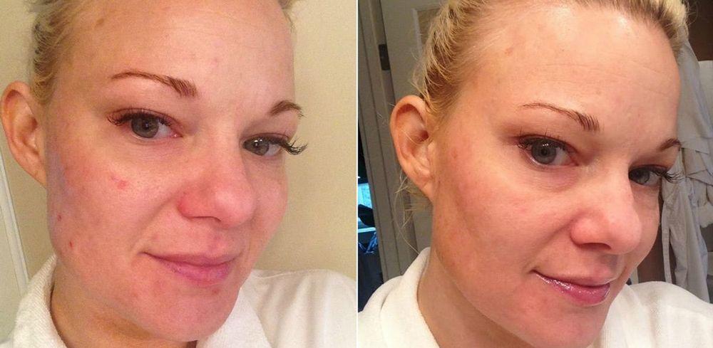 Фото до и после маски
