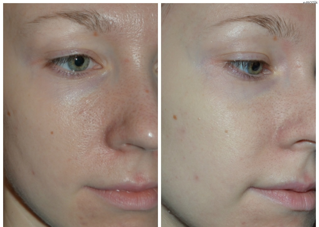 Результаты на лице после ВВ крема