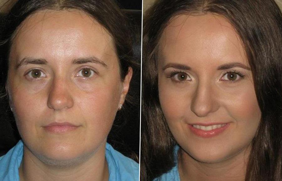 Фото до и после крема