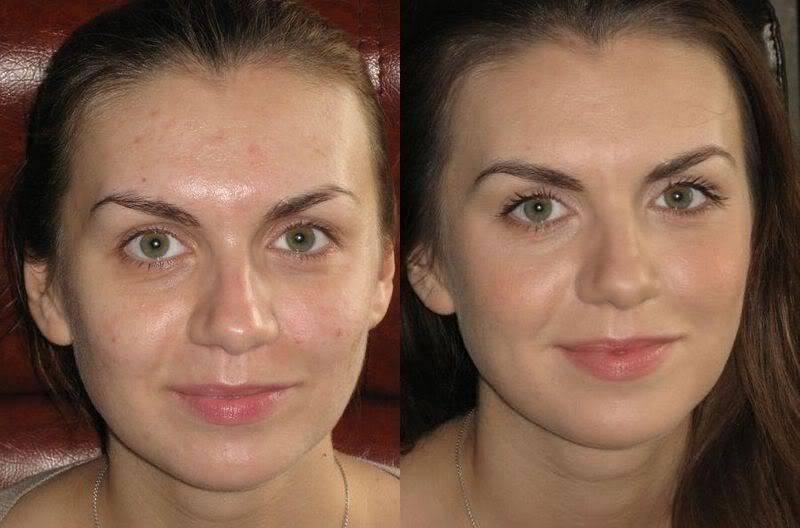 Результат девушек после крема