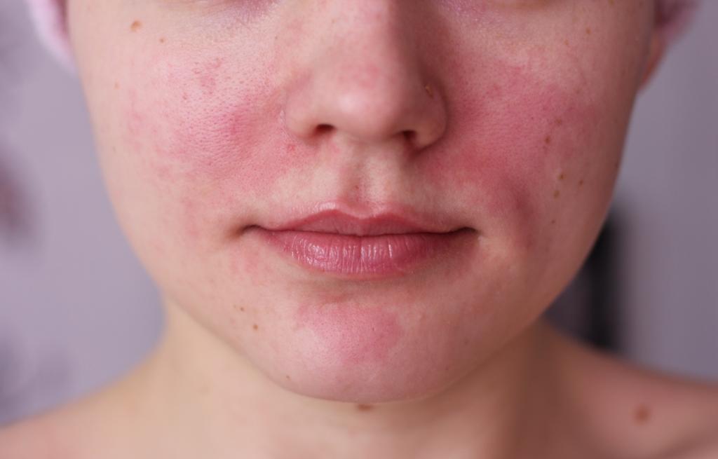 Ожог на лице после крема
