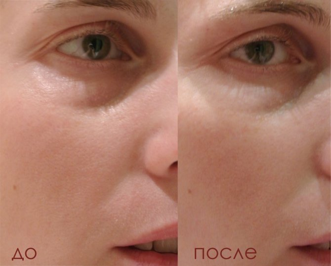 Эффект до и после на фото