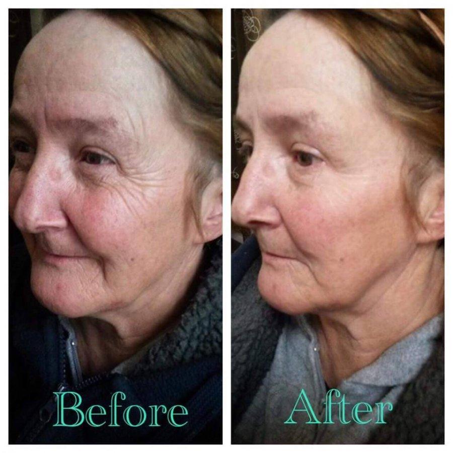 результаты после применения крема