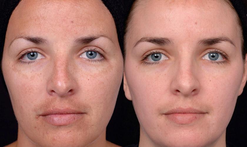 Отзывы с фото до и после на атравматическую чистку лица