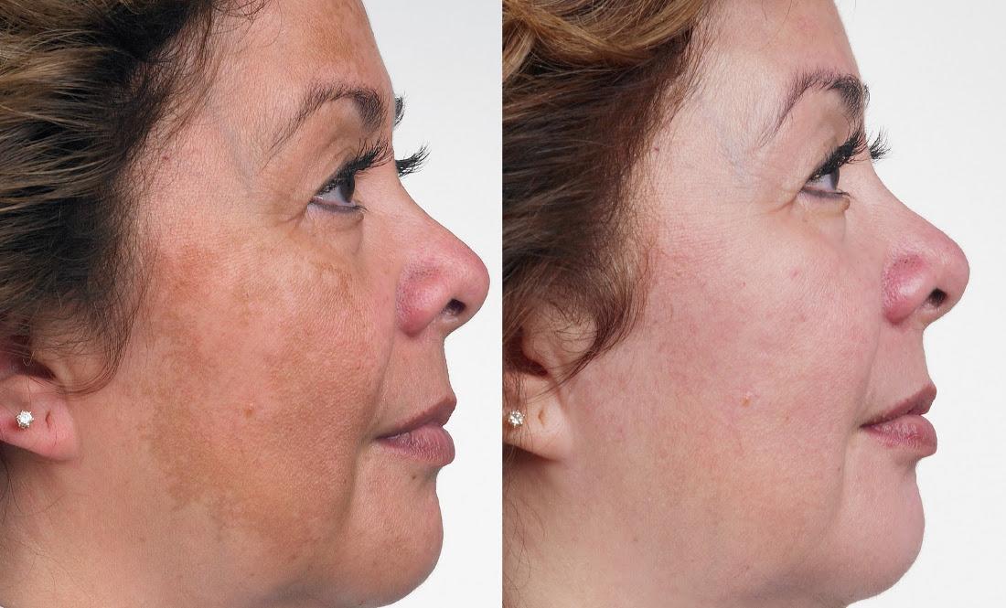 Результат после крема для лица