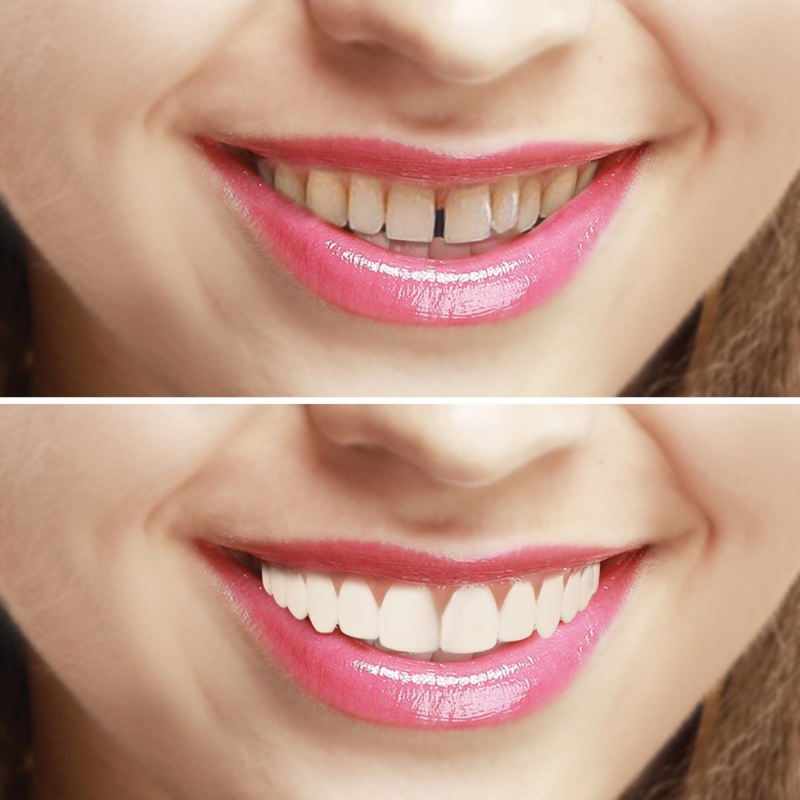 Преимущества Perfect Smile Veneers