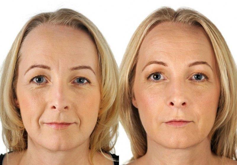 Реальные отзывы женщин на использование аспириновых масок