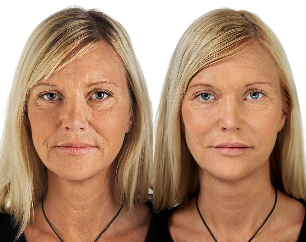 Лицо после химической чистки