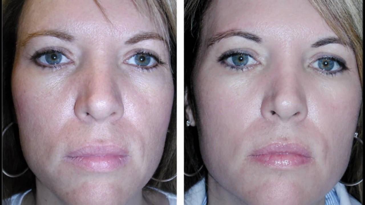 Фотографии до и после процедур