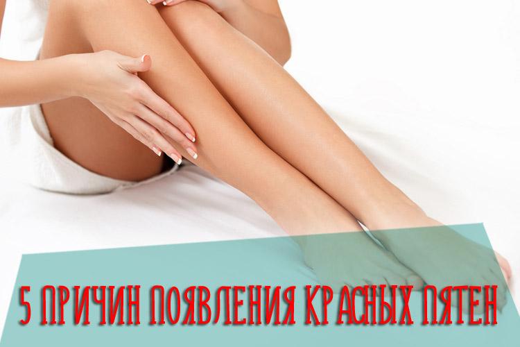 5 причин появления красных пятен на ногах, которые не чешутся и не шелушатся