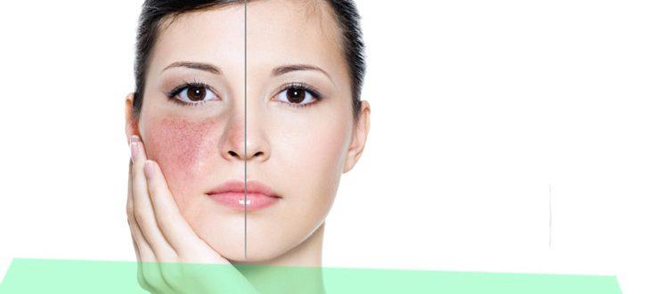 Что делать, если на лице появилась краснота, шелушение и зуд