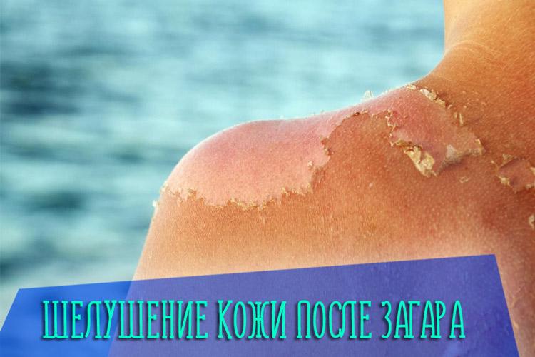 Что делать, если после загара начала шелушится кожа