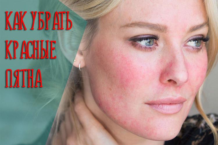 Что делать если появилось красное пятно на коже, которое чешется и шелушится