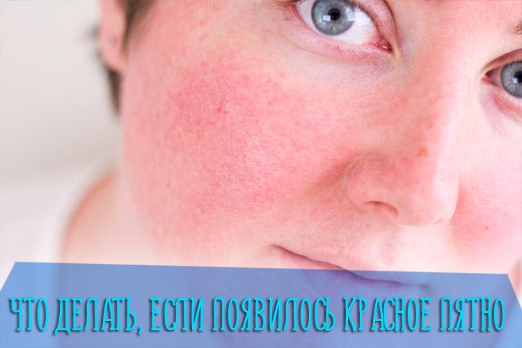 Что делать если появилось красное пятно на коже, которое не чешется и не шелушится