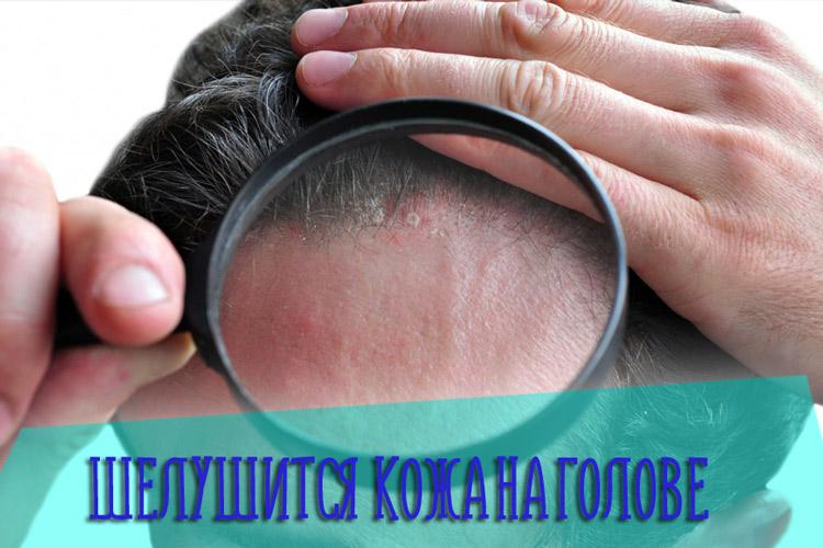 Что делать если шелушится кожа на голове – причины и лечение проблемы