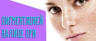 Как бороться с пигментацией на лице при беременности