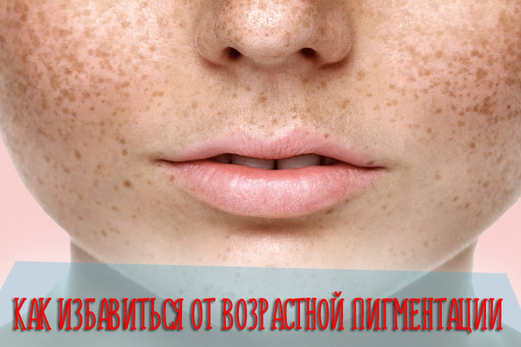 Как избавиться от возрастной пигментации на коже лица