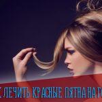 Как лечить красные шелушащиеся пятна на голове