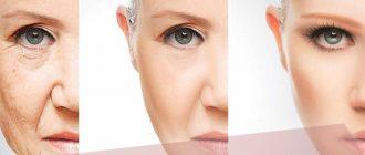 Плазменное омоложение лица – отзывы с фото до и после