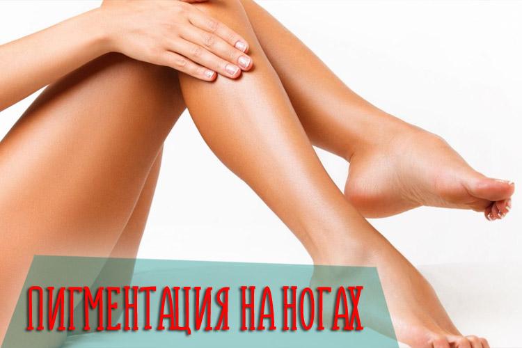 Причины и лечение пигментации на ногах с помощью аптечных и домашних средств