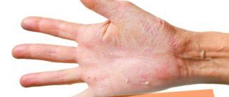Шелушатся ладони и пальцы рук, причины и лечение кожи