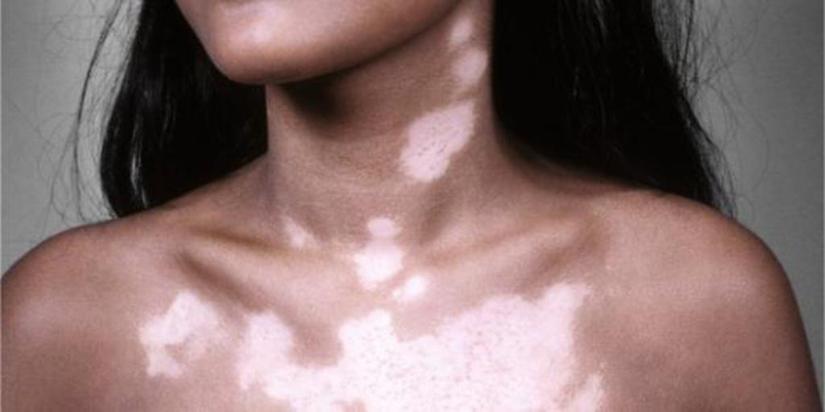 Белые пятна на теле
