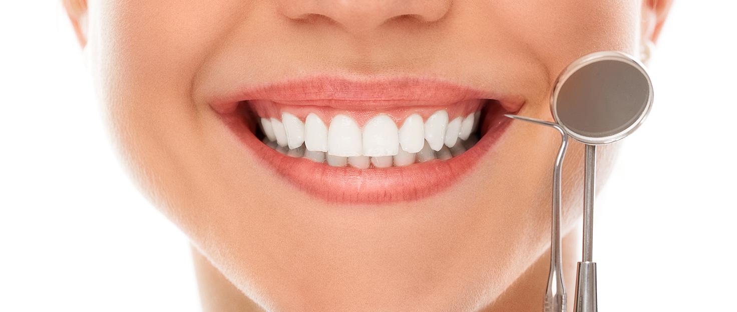 Как избавиться от пигментации на зубах