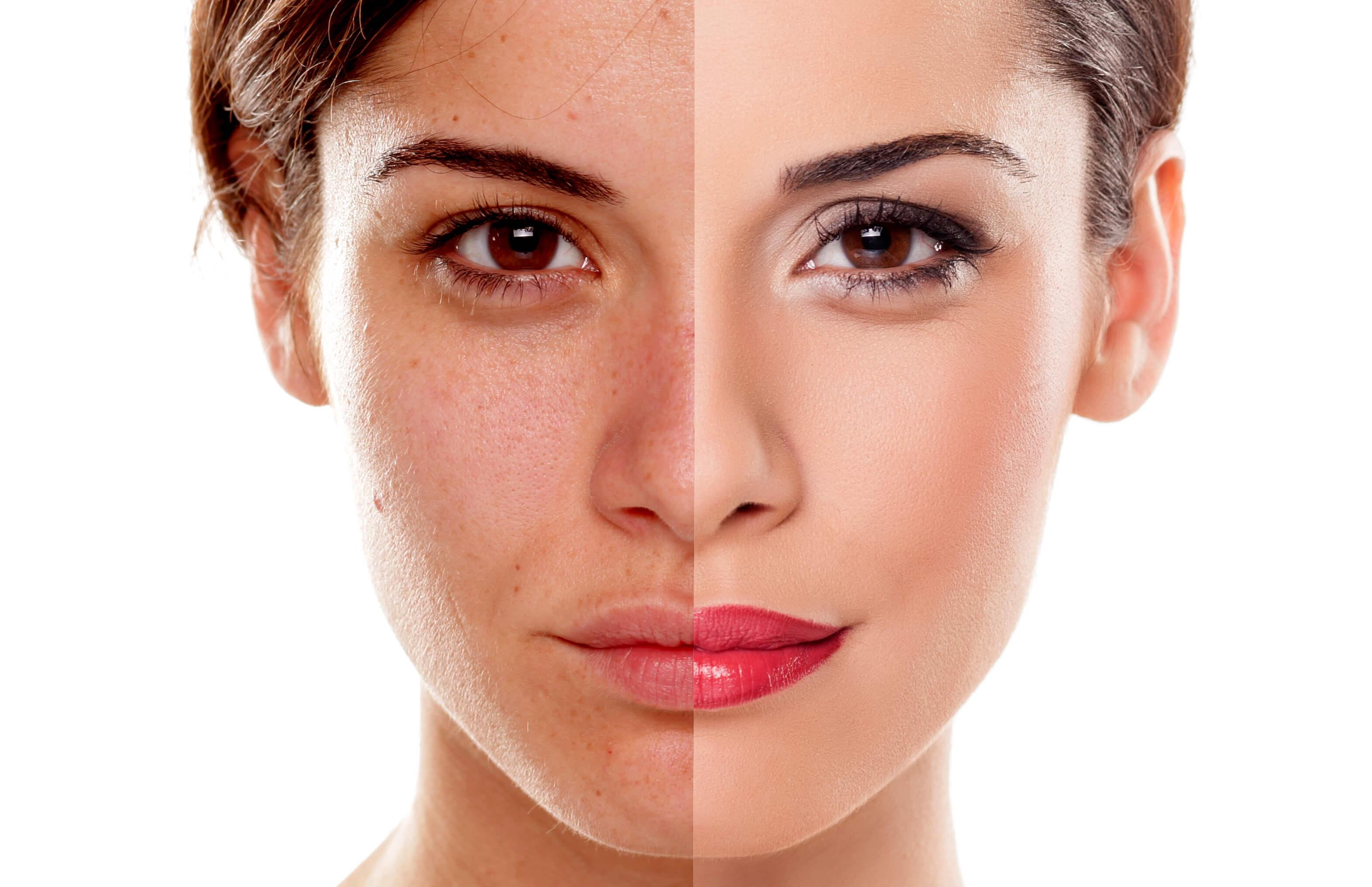 Как почистить поры на лице