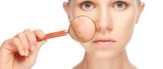Причины появления купероза на лице