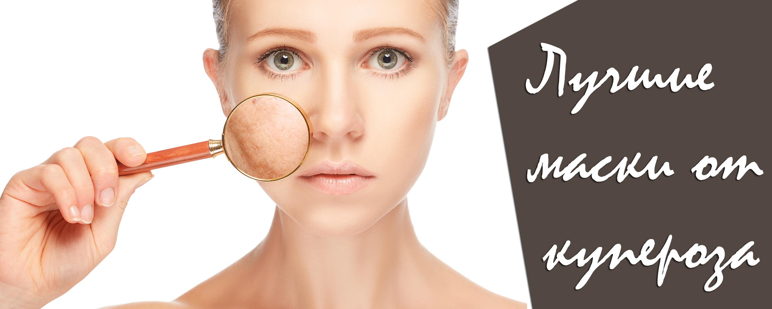 Лучшие рецепты масок от купероза на лице в домашних условиях