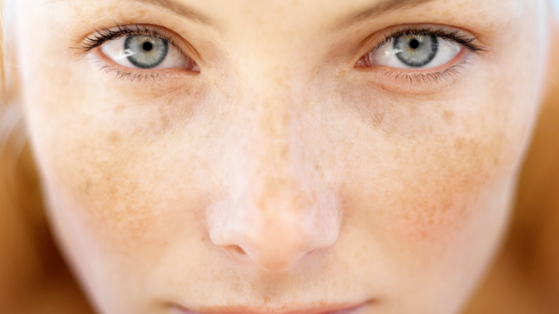 Причины пигментации на лице
