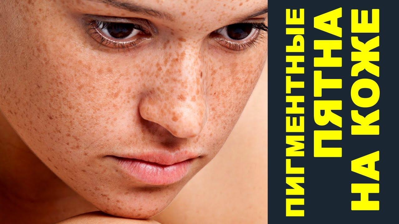 Кожное витилиго – причины и лечение обесцвечивания кожи